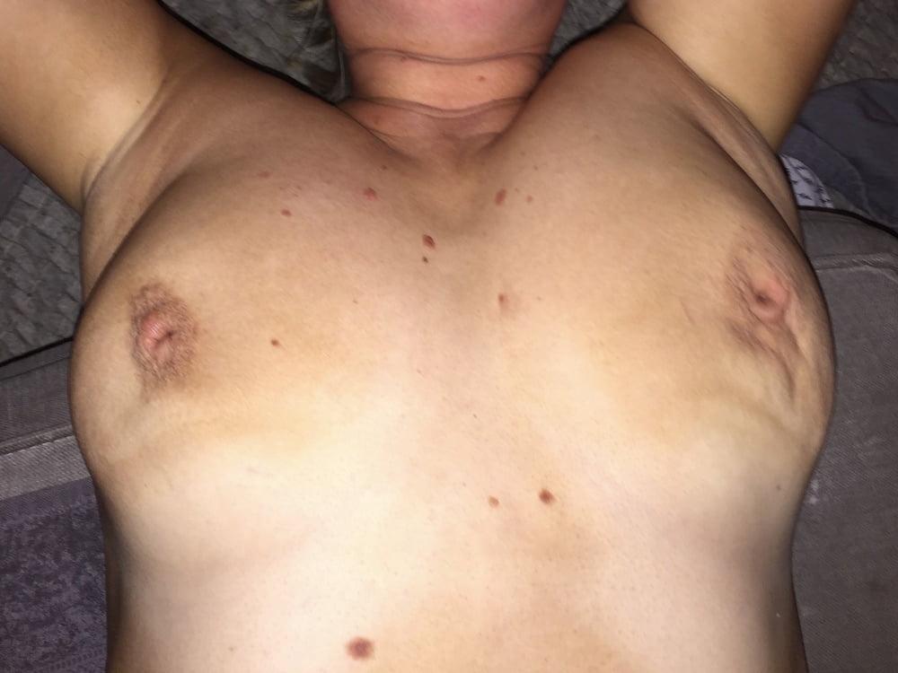 Inverted Wrinkled Nipples Fetisj - 12 Pics - Xhamstercom-4362