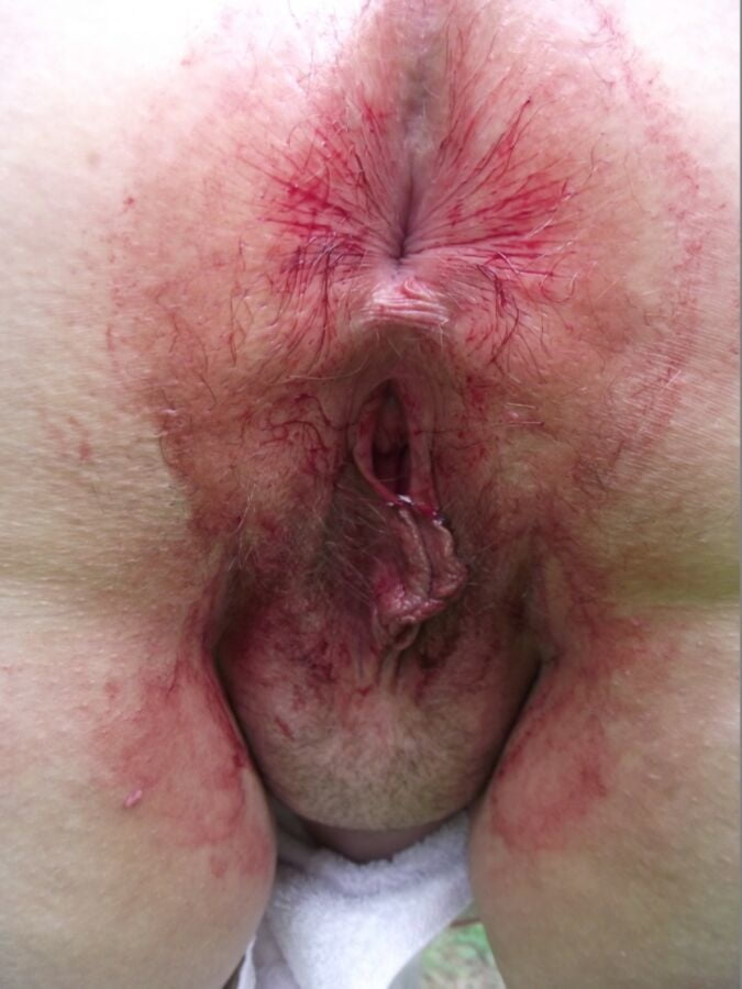bloody-pussy-pic