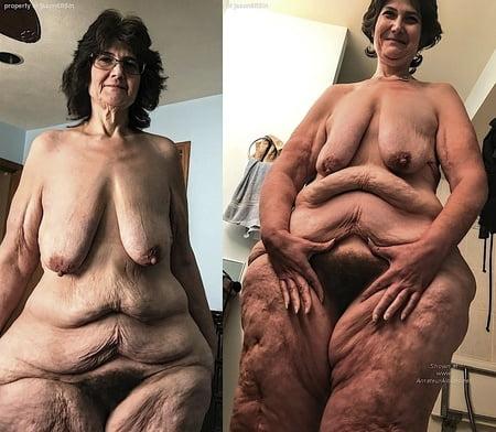 Lipedema Porn