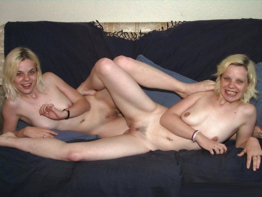 Showing Xxx Images For Siamese Twin Porn Xxx