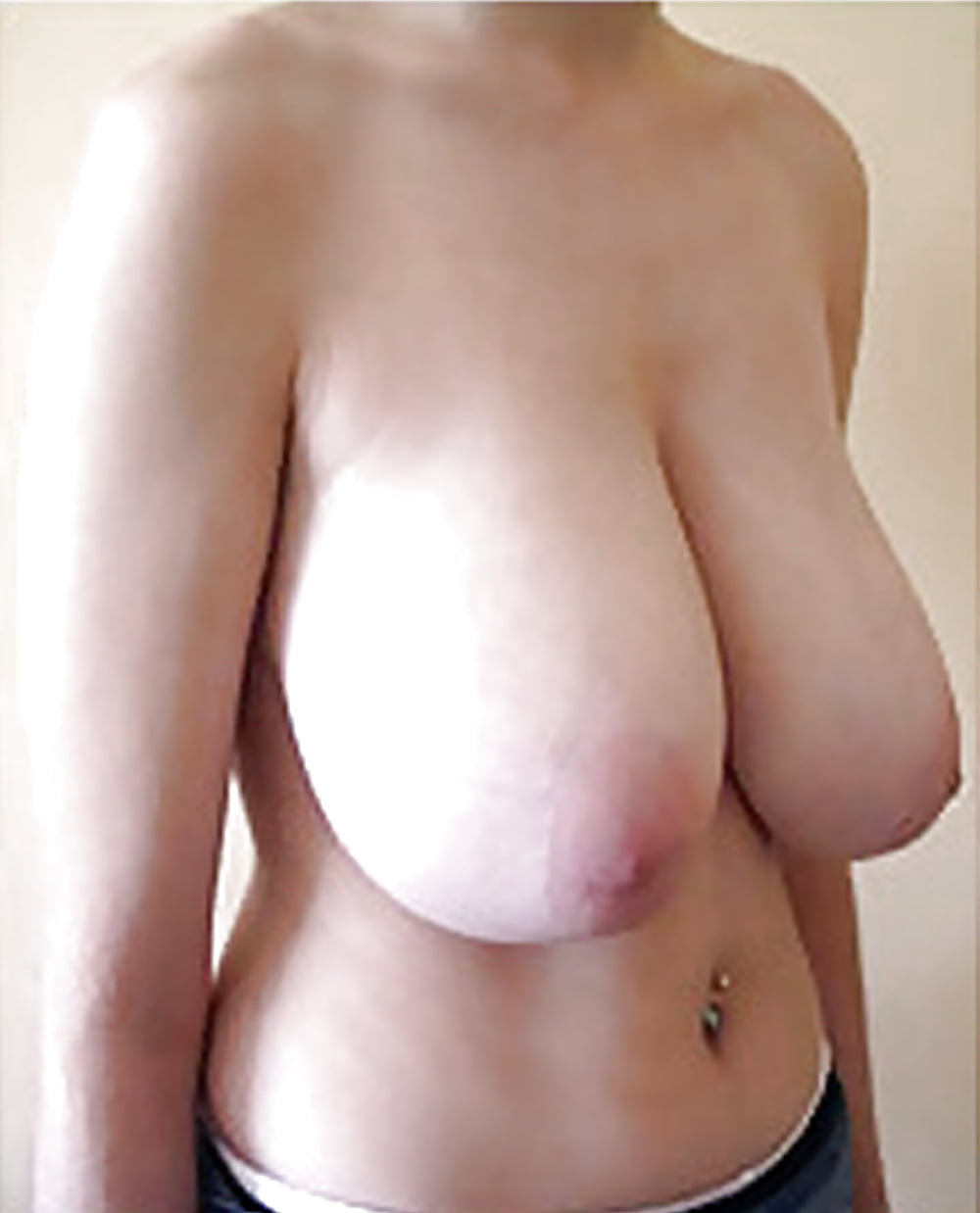 Breast lift areola reduction cost-2508
