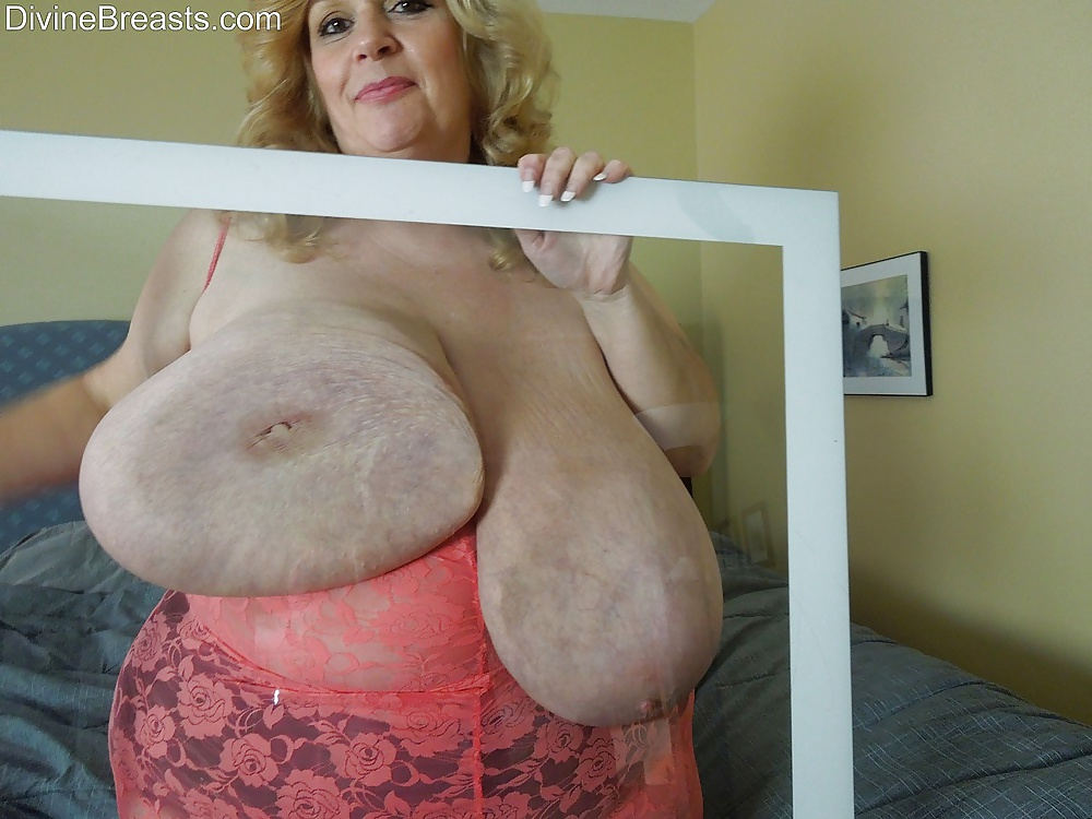 Woman Who Claims World's Largest Breasts, Sheyla Hershey, In A Coma After Suicide