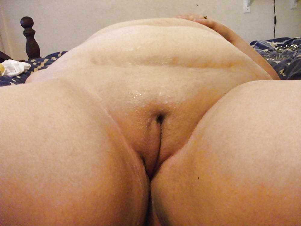 Bald fat pussy 7