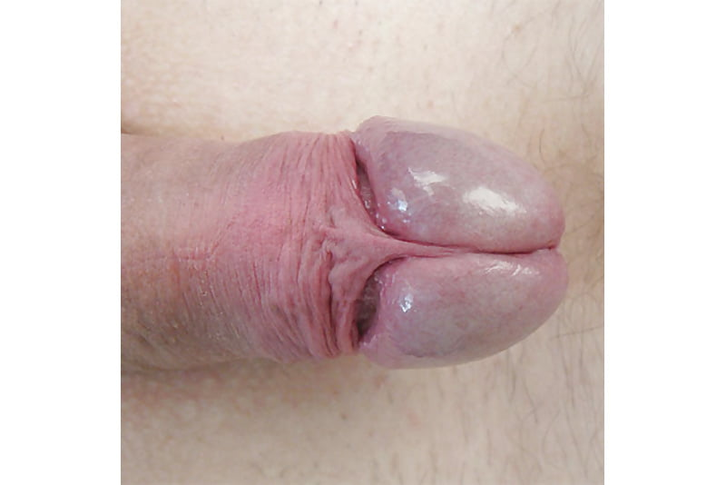 What are these lumps on my penis