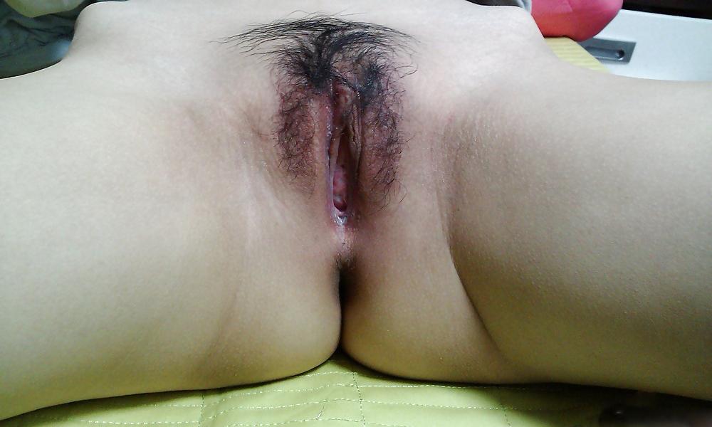 Abnormal vagina nude