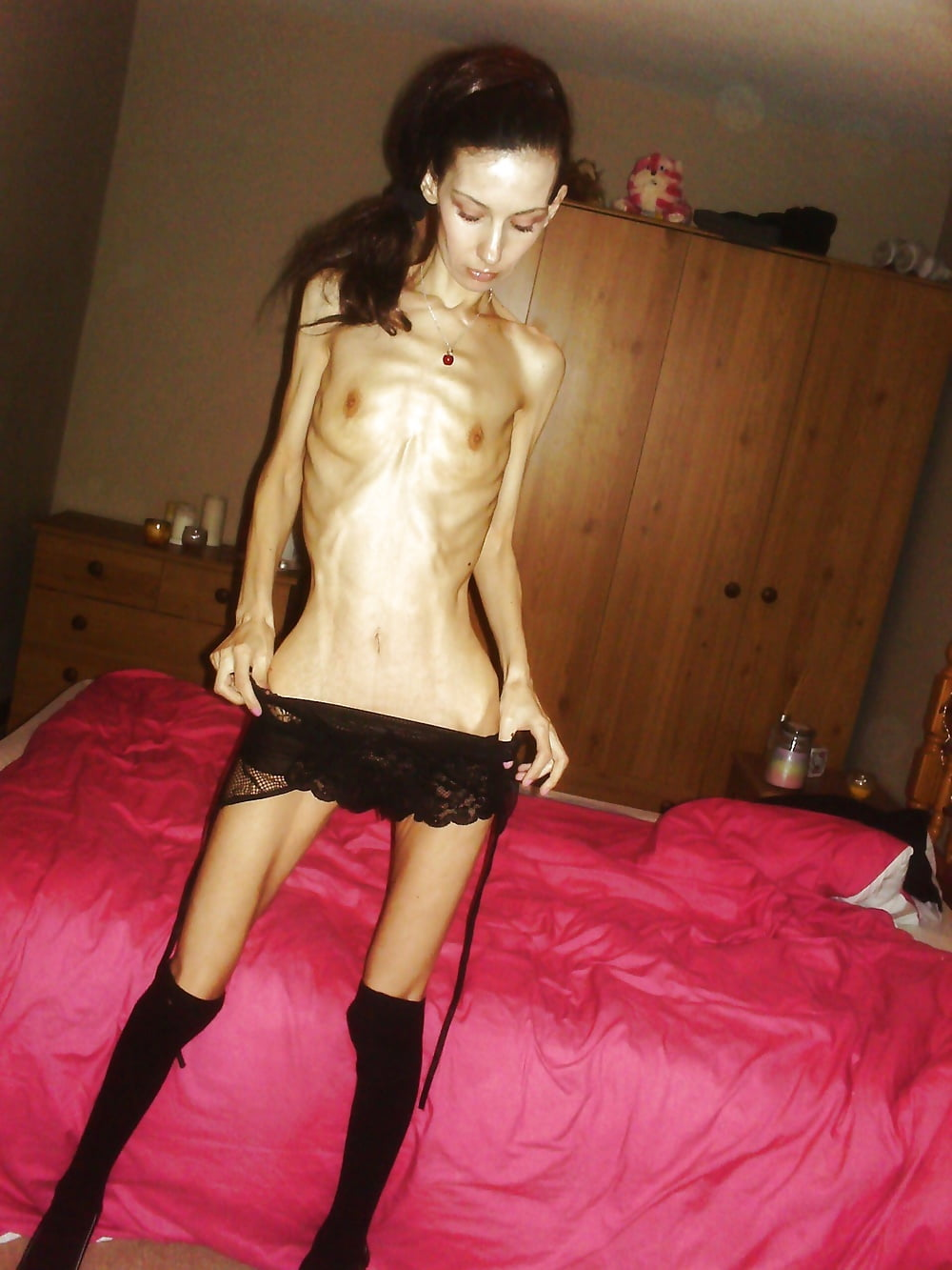Anorexia tits, action of sex