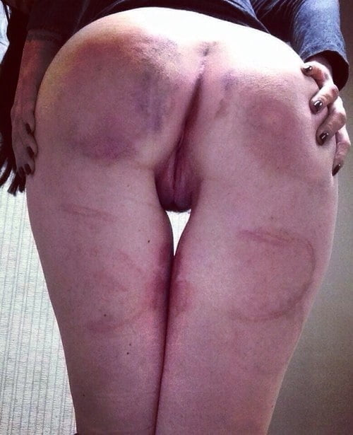 What does a vagina look like after a hysterectomy-6921