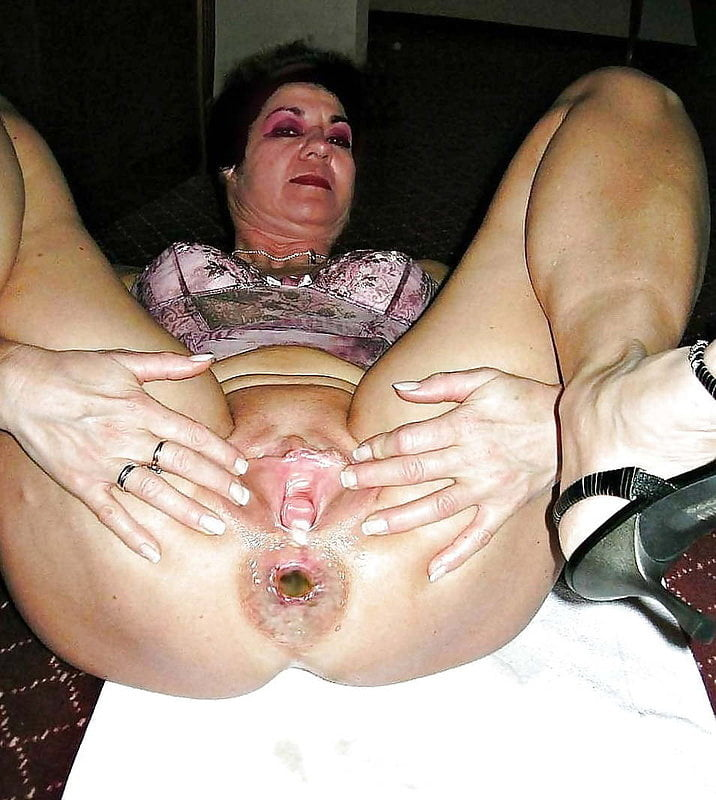 Asshole Fisting Granny Old 1