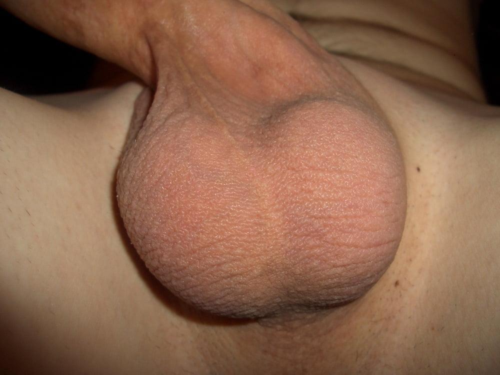 Nude beach scrotum — 7