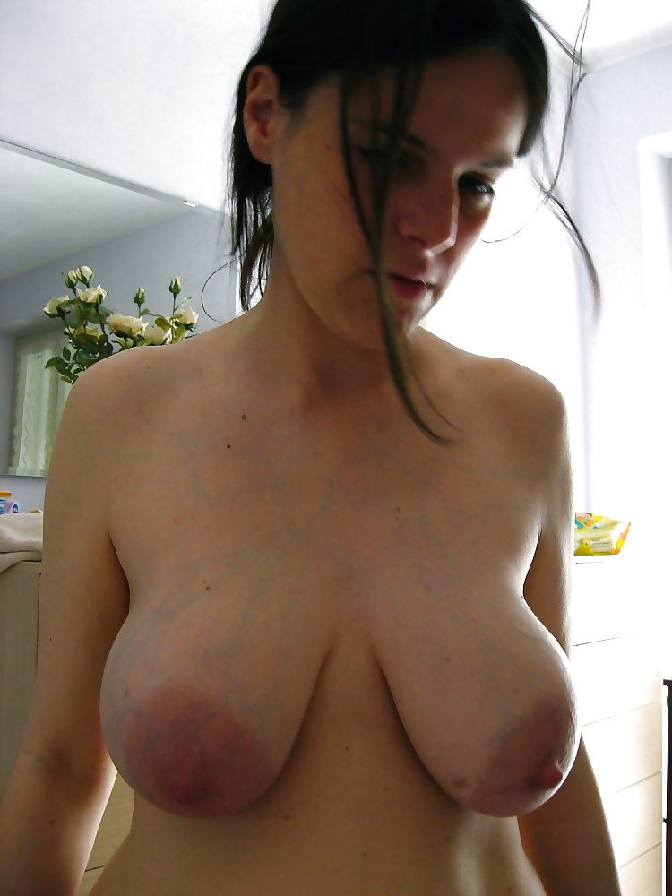 Causes and prevention of sagging breasts