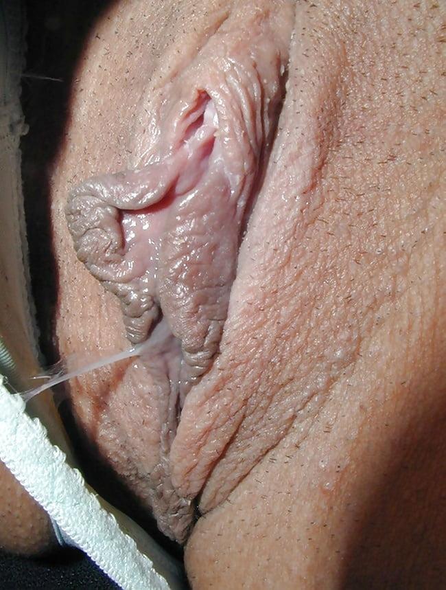 Fotos schamlippen Vulva •