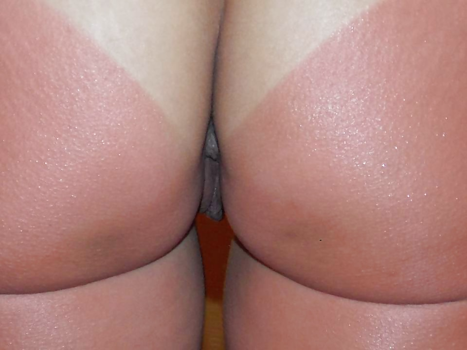 a-sun-burned-butt-picture-my-wife-showing-her-tits