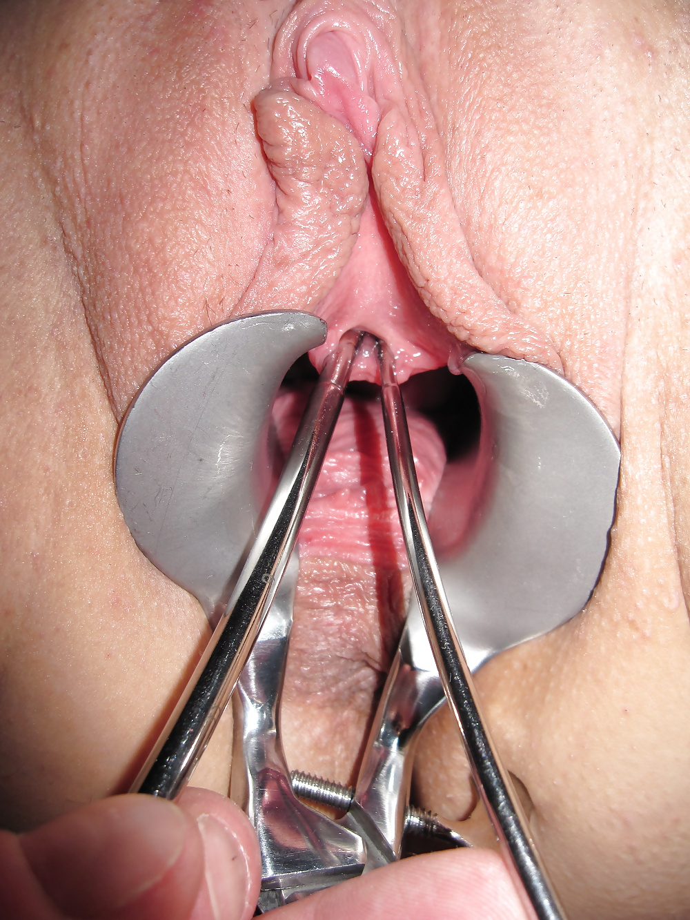 Фото женской уретры порно, жена дала другу в попку