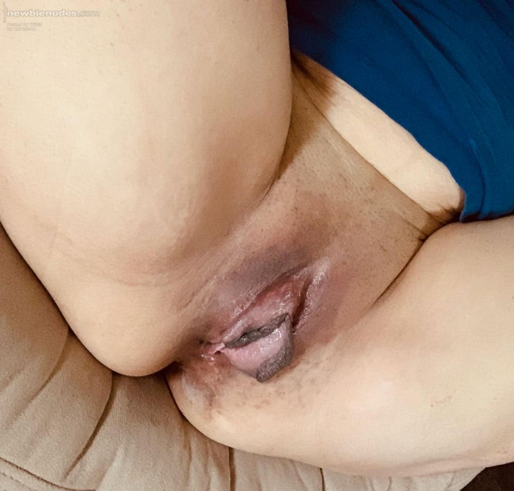 clitoris hood The