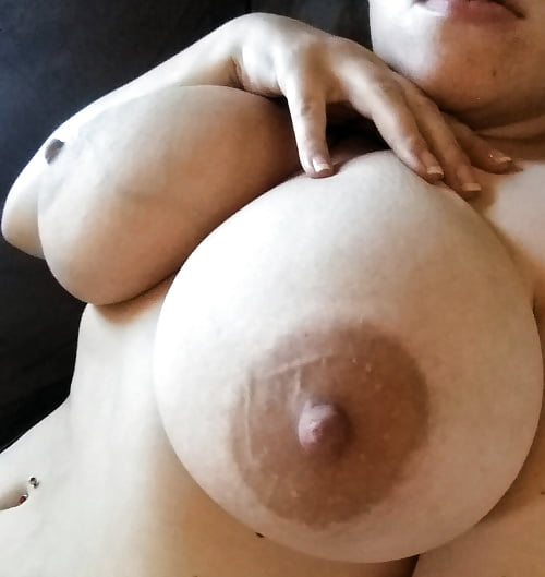 milk-engorged-breasts-pics