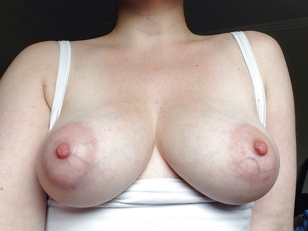 Veiny Swollen Tits Breasts And Udders