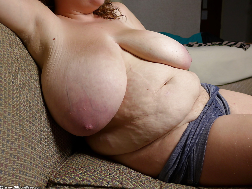 Bbw stretch marks