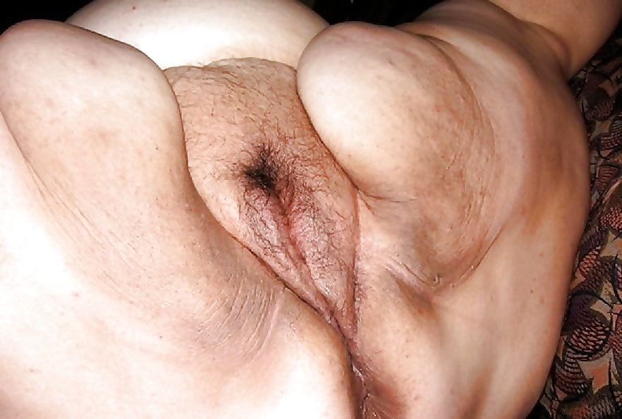 Old hairy fat